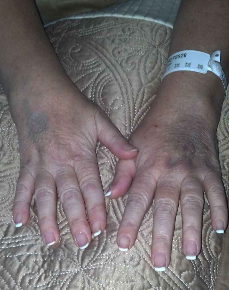 Bruises on hands