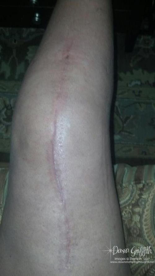 Leg Thursday March 28, 2013
