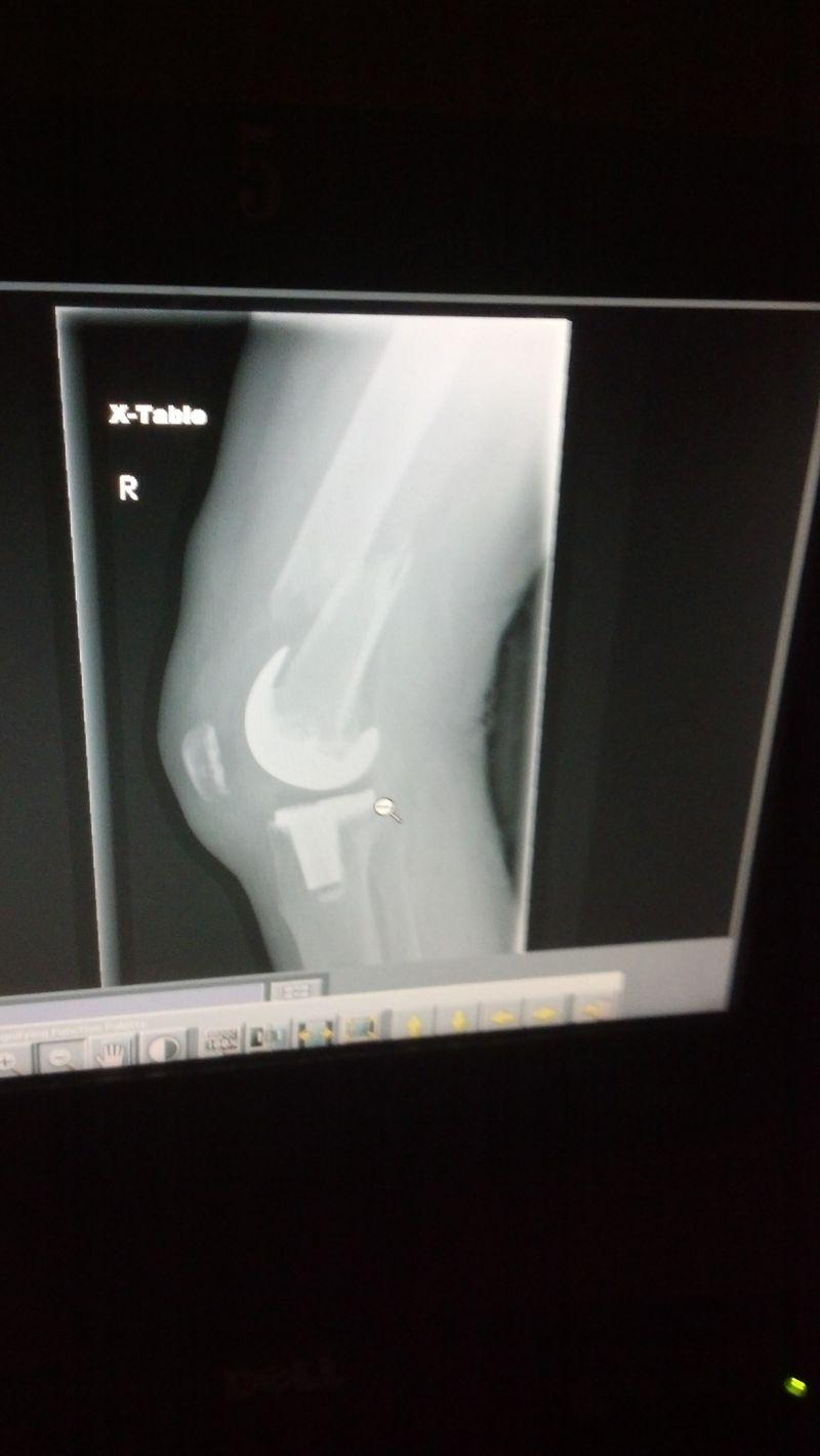 Knee X ray femur bone broke