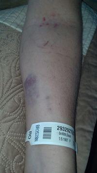 Bruises #1