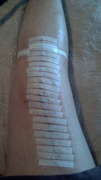 Taped up leg no staples