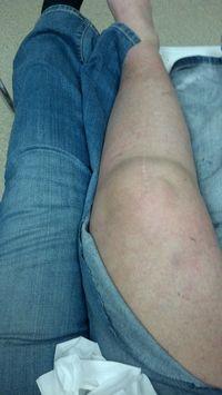 Leg & Jeans in ER January 31, 2013
