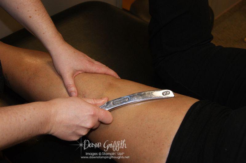 Tool to help break up scar tissue