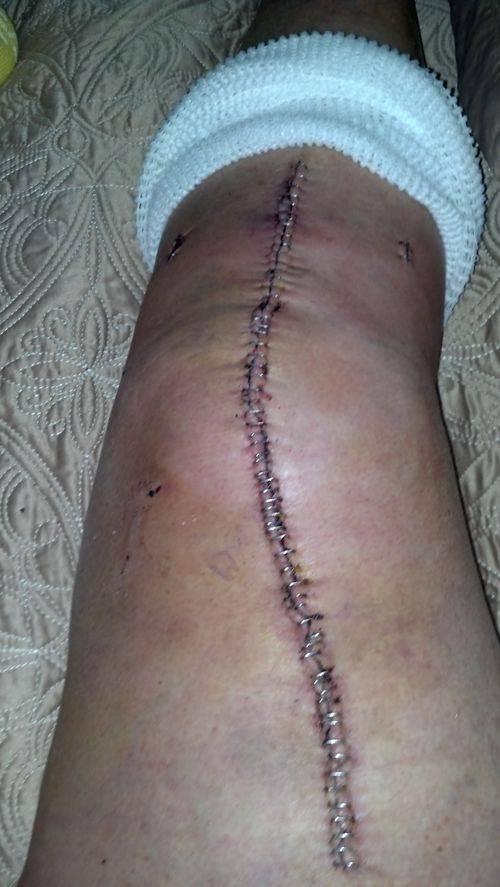 Knee with 80 staples