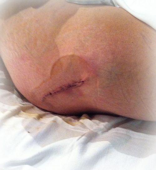 Hip incision #1